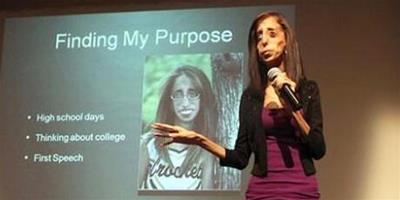 世界最醜女人走紅骷髏女孩成出色演講師